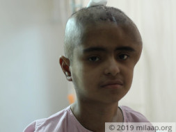 The Large Scar On Her Head Tells The Story Of Her Pain