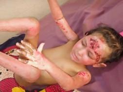 Help 7 Years Old Subhasmita Sahoo Fight Burn Due To GAS Cylinder Blast