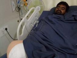 Help my friend Undavalli Nagendra Babu fight Road traffic accident