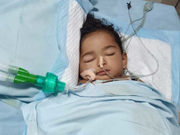 Support Baby Neha to recover from Burn injury
