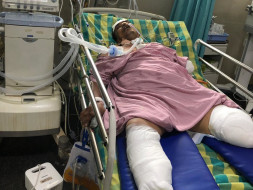 Support  Someshekhar B K Recover From Accident
