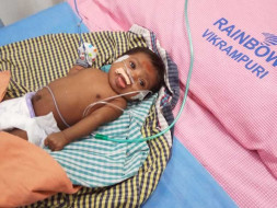 Save The 1-month-old Small Baby Recover From Lungs Complication