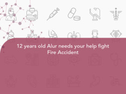 12 years old Alur needs your help fight Fire Accident