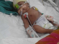 Support Baby Of Mamta recover From Severe Pneumonia