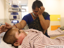 Help Dhawal Mohan Recover From Electric Burns