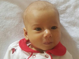 4 Months Old Firdavsa Bhakhabova Needs Your Help Fight Biliary Atresia