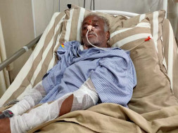Nanjunde Is Struggling With Brain Stroke And Lungs Issue. Help Him
