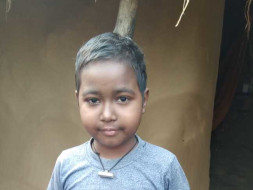 10 Years Old Krish Mallick Needs Your Help Fight Lupus