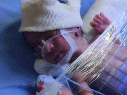 This 5 Days Old Needs Your Urgent Support In Fighting Respiratory Distress Syndrome
