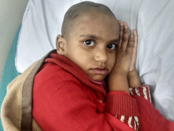 8 Years Old Haana Needs Your Help Fight Bone Damage On Forehead