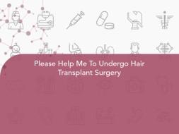 Please Help Me To Undergo Hair Transplant Surgery