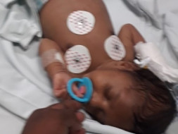 Help Baby Mallikarjun 2 months old diagnosed with end state liver disease