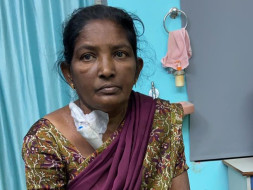 48 Years Old Lalitha Needs Your Help Fight Chronic Kidney Disease