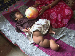 Help Pragya Fight Rare Disease