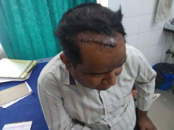 Help Pradeep Gangwa Recover From Accident