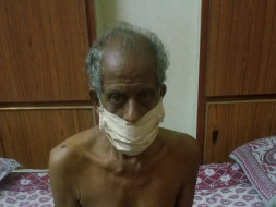 Help My grand Father Fight Obstructive Jaundice And Liver Infection