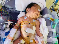 1 Day Old Baby Of Ashwini Needs Your Help Fight Congenital Diaphragmatic Hernia