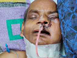Support Sanamul Haque Recover From Mouth Cancer