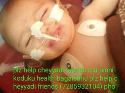 Help Baby Of Anita Undergo Surgery