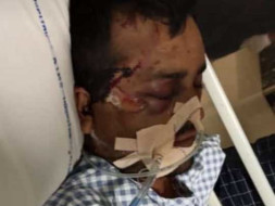 Support Ramesh Recover From Accidental Injuries