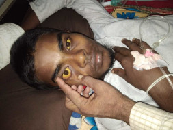 Help Sabir Ali Recover From Jaundice
