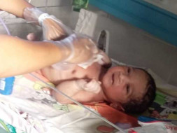 Support Baby Of Sravanthi Undergo Heart Surgery