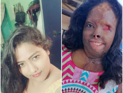 Help Zakira Recover From Acid-Attack