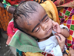 Help! Two-month-old baby Saloni to survive a serious medical condition