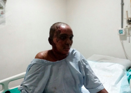 Help Kiran Patil Recover from Burn Injuries Caused Due to an Accidental Blast in the Kitchen