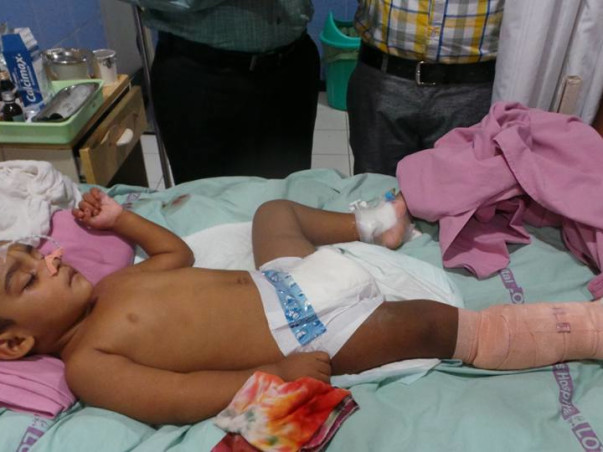 Help Nizam, who accidently fell from IInd floor of his house stuck up in Electric wires then again fell on road