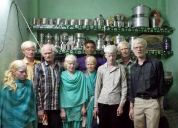 albinismindiagroup