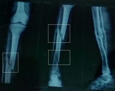 X-ray of the fractures