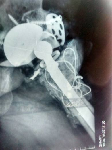 dislocated hip joint after 7th surgery (2)