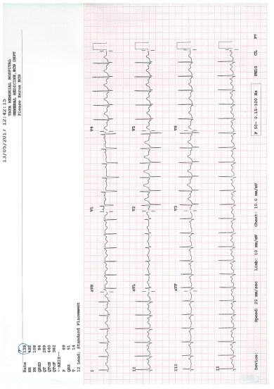 Tanaya's Treatment Updated Document (4/18)