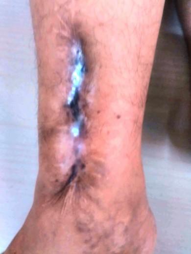 Right leg - Damage
