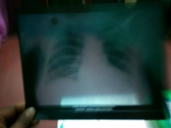 Heart scan xray report came negative heart is not so good