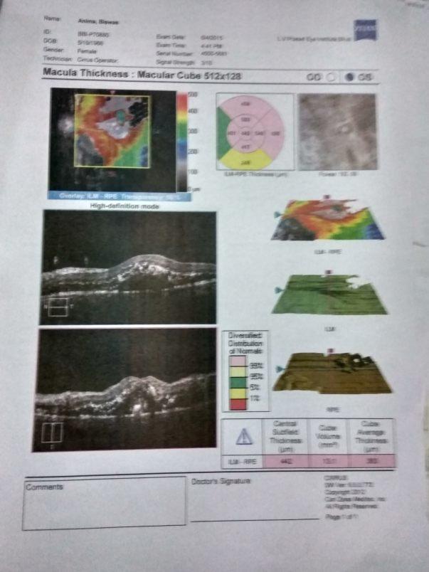 Eye test medical report