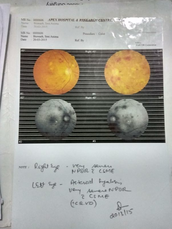 Retina scan report came very bad
