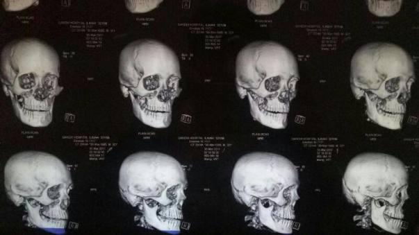 Diagnosis1