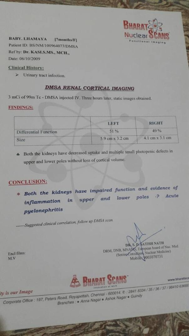 DMSA Renal cortical imaging