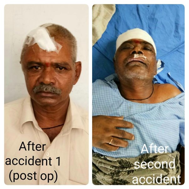 Picture after accident 1(after op) and after accident 2
