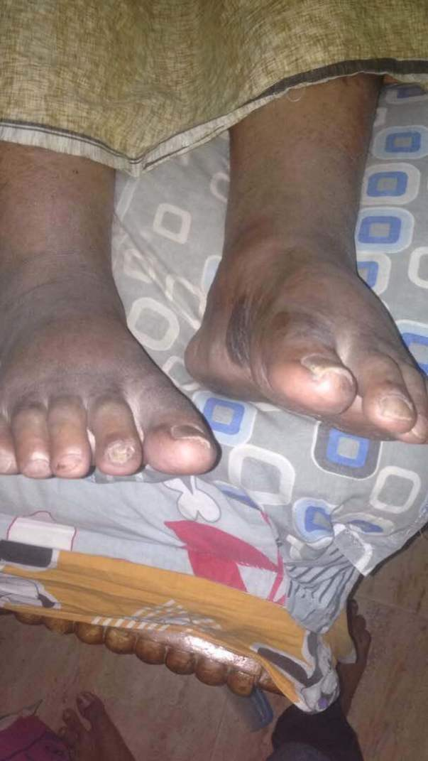 Edema formed in his legs and black scars