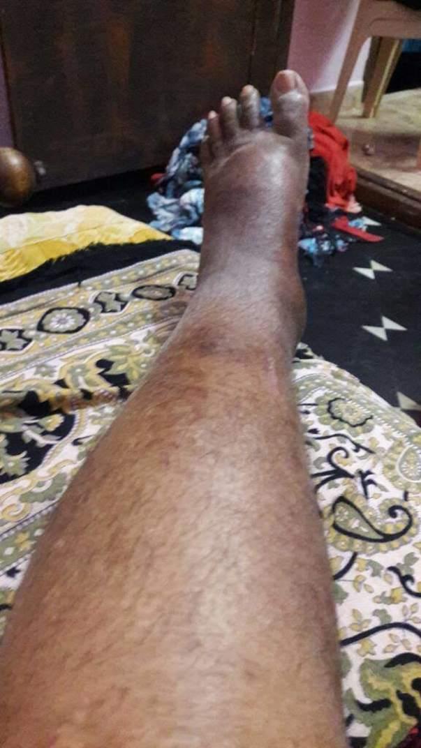 His leg