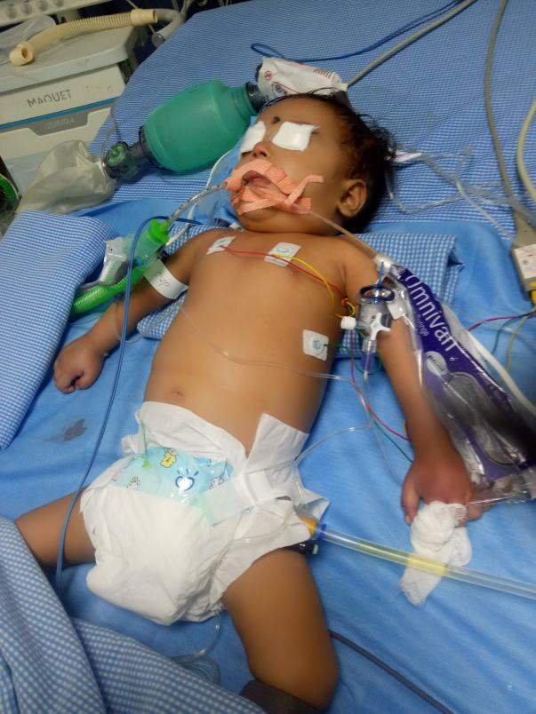 Currently admitted in PICU Rainbow Hospital, Banjara Hills, Hyderabad