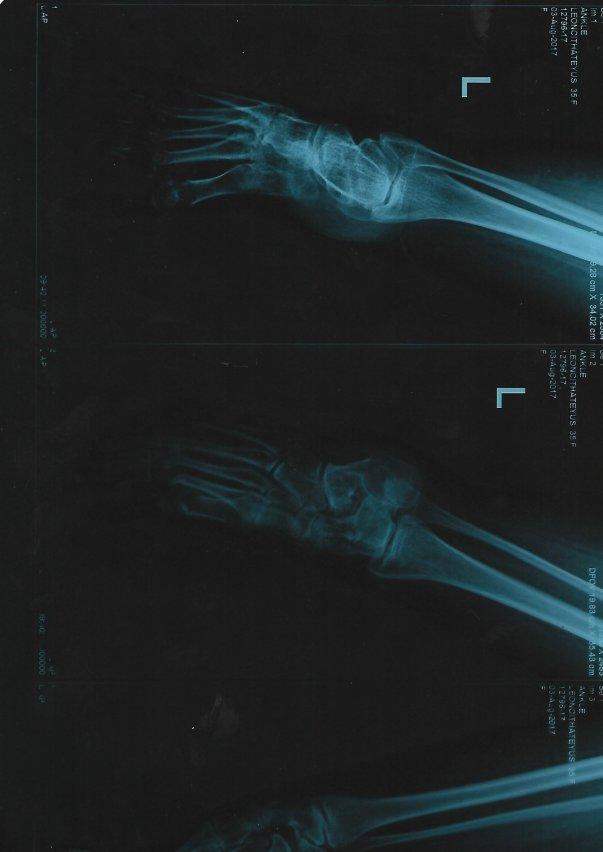 Leg X-ray