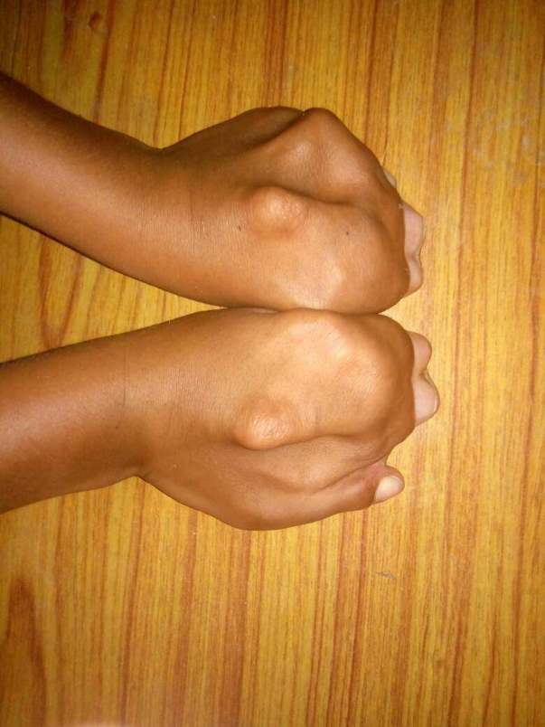 Jammed hand fingers of Aswanth