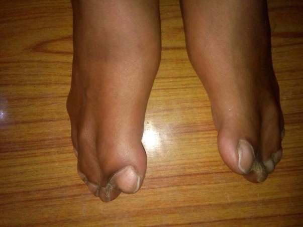 Jammed leg fingers of Aswanth