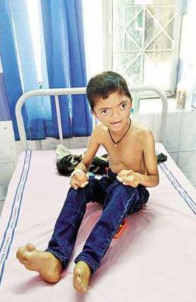 Aswanth under treatment