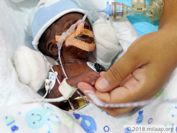 Nurse's 20-day-old Baby Is Now Bleeding Into His Lungs And Needs Help