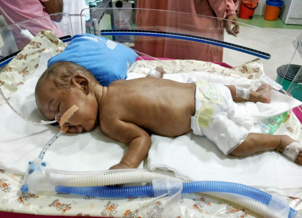 Help Baby of Karthika to See World After an Year of Struggle